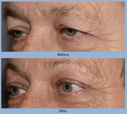 eye eyelid eyelids blepharoplasty surgery before and after photos - Neal D. Goldman, M.D. - Facial Plastic Surgeon - Goldman Center for Facial Plastic Surgery