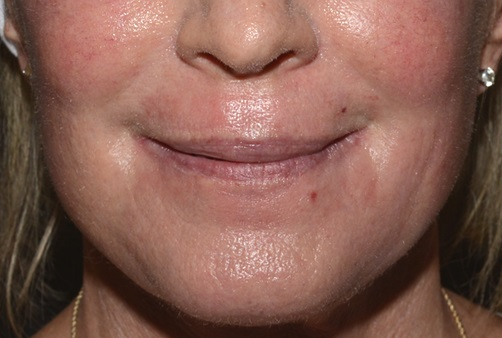 Fractional CO2 Laser - One Week After Treatment