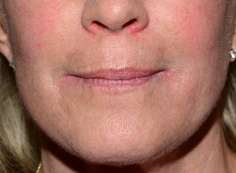 Fractional CO2 Laser - After Treatment