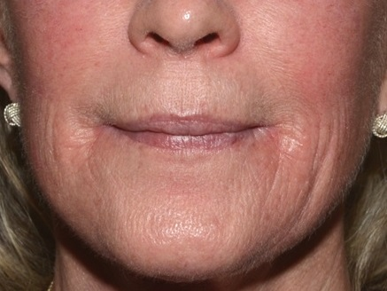 Fractional CO2 Laser - Before Treatment