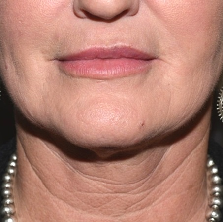 Kybella After - Neal D Goldman, M.D. - Facial Plastic Surgeon - Goldman Center for Facial Plastic Surgery