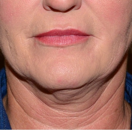 Kybella Before - Neal D Goldman, M.D. - Facial Plastic Surgeon - Goldman Center for Facial Plastic Surgery