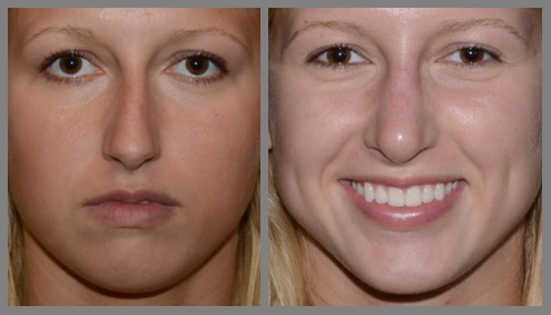 Rhinoplasty - Neal D. Goldman, M.D. - Facial Plastic Surgeon - Goldman Center for Facial Plastic Surgery